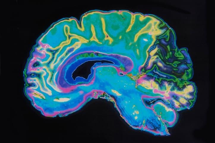 MRI image of the human brain
